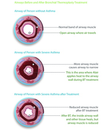 Airway-Cross-sections Asthma from rep