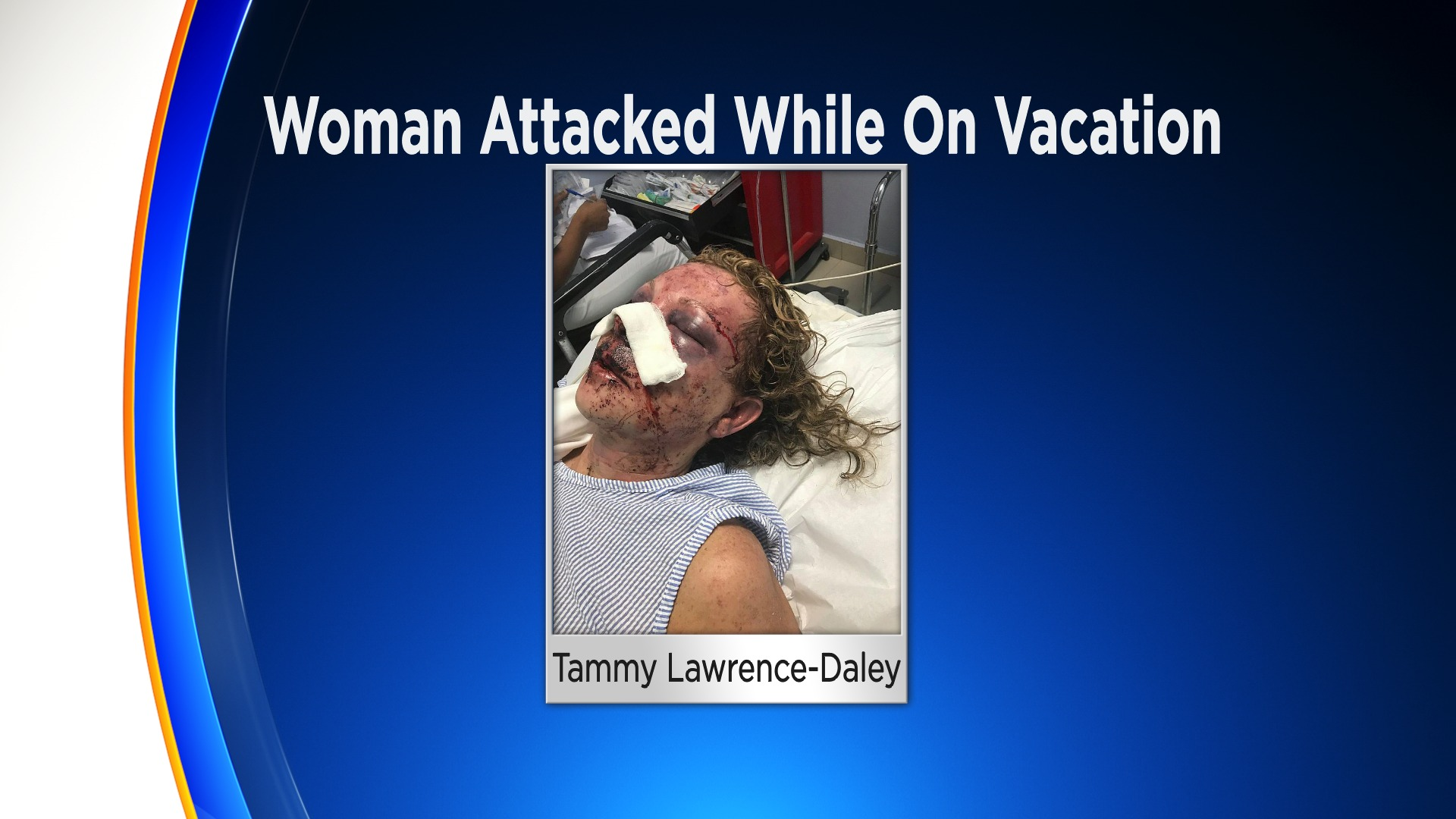 Dominican Republic Resort Where Delaware Mother Claims She