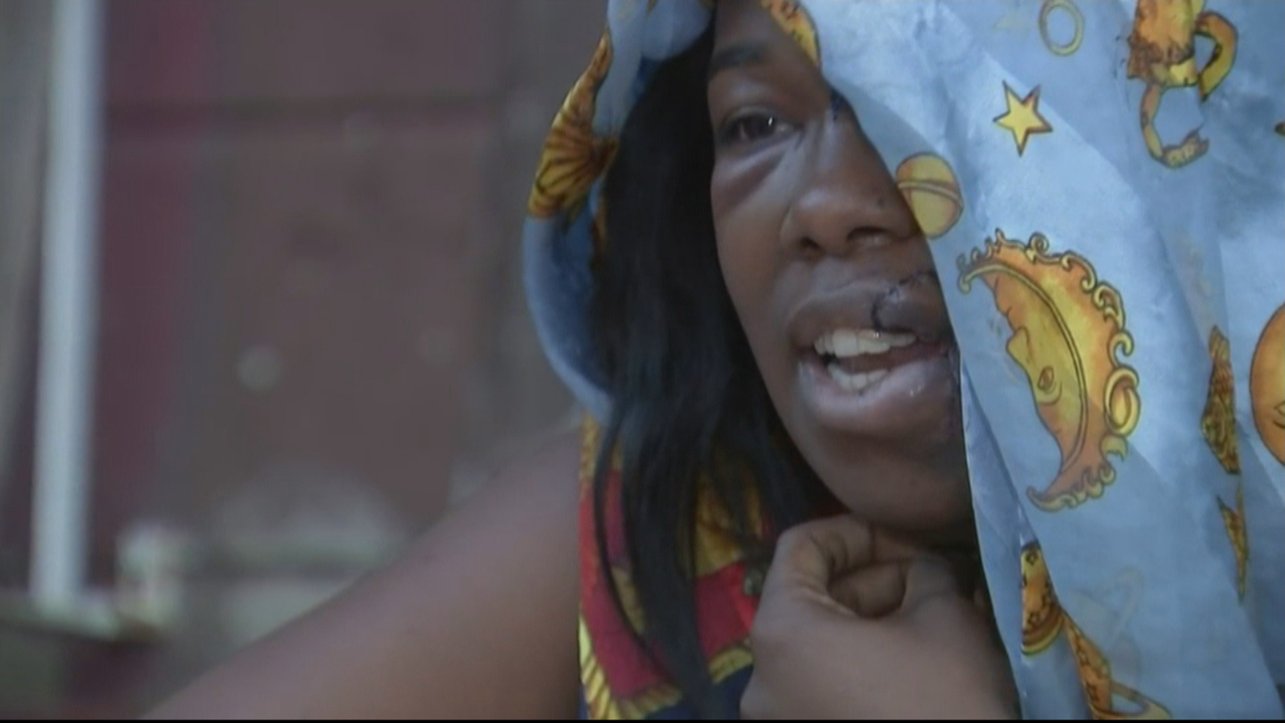 Woman Recalls Being Jumped, Stabbed By '13 Or 14 Girls' In Brawl That Left Sister Dead In Brewerytown