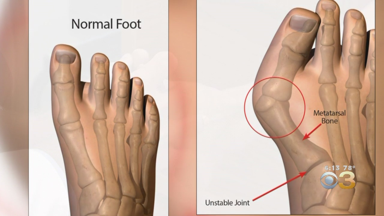'A Huge Advancement': New High-Tech Help For People Who Suffer With Bunions